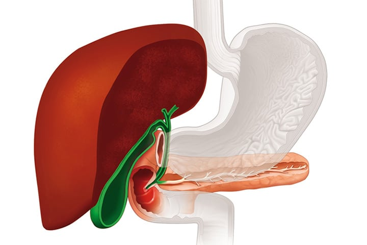 operation is required for 14mm gallstone