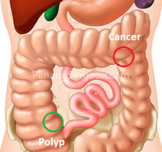 Cancer In The Colon