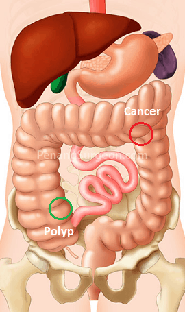 colon cancer and polyp removal