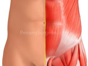 Hernias: A Pain in the Groin