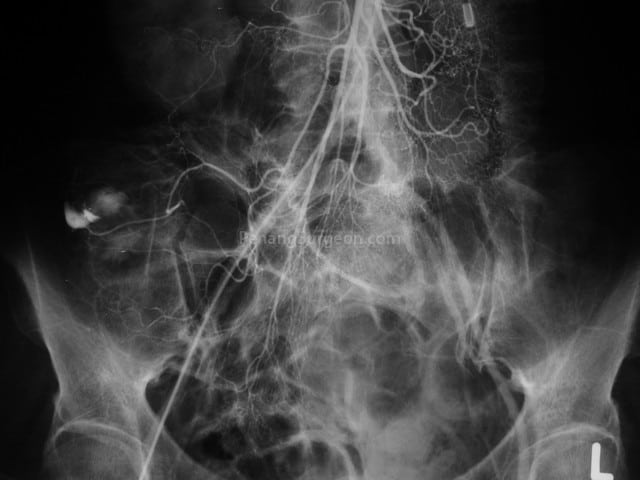 Angiogram (special X-ray of blood vessels) showing bleeding from diverticular disease of the right colon (arrow). This patient required emergency surgery to stop the bleeding.